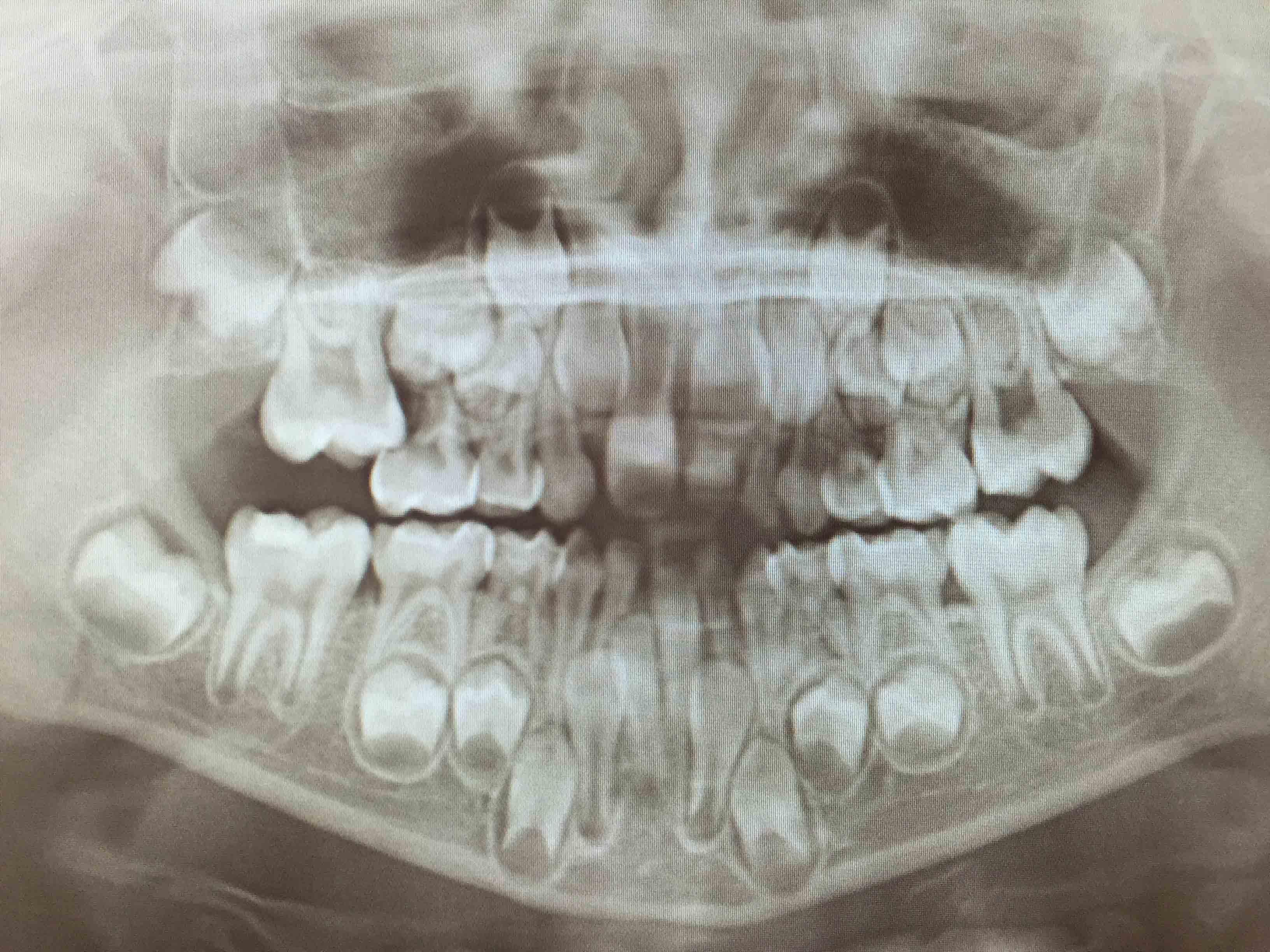 Röntgenbild som visar normal tandutveckling hos en 7-åring.