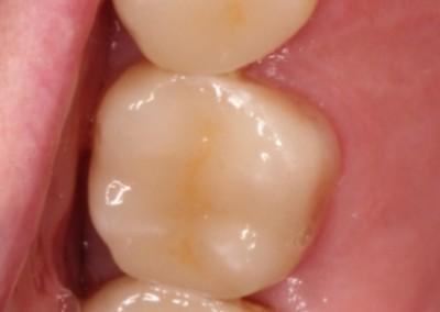 laga sprucken tand